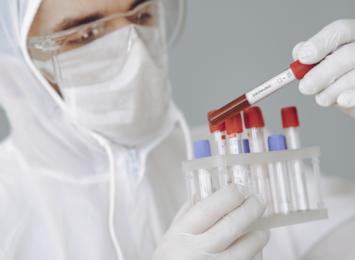 Koronawirus na Śląsku: 1328 zakażeń na blisko 7 i pół tysiąca wykonanych testów