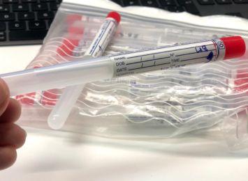 Prezes KRDL: test serologiczny z dyskontu może wprowadzić nas w błąd