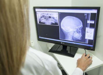 Przyszłość Zakładu Diagnostyki Obrazowej w WSS nr 3 w Rybniku pod znakiem zapytania