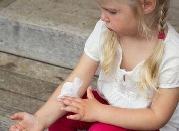 Atopowe zapalenie skóry u dzieci. Jak leczyć? Jak łagodzić? Radzimy